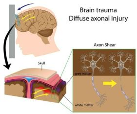 diffuse axonal injury