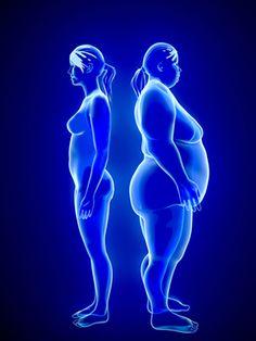 obesity comparison
