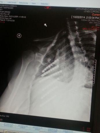 After rib surgery5