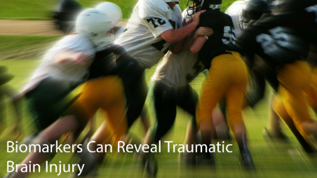 biomarkers-can-reveal-tramautic-brain-injury-293810