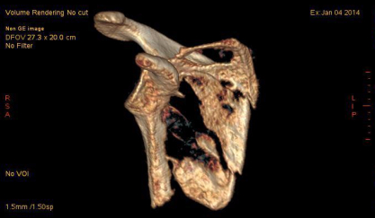 fractured scapula